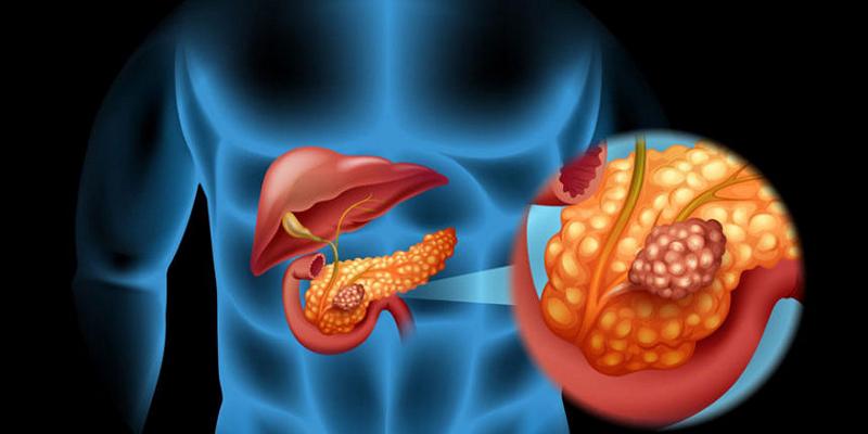 Нейроэндокринные опухоли поджелудочной железы диагностика thumbnail