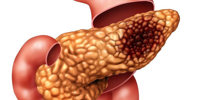 лечение нейроэндокринных опухолей поджелудочной жедлезы в Бельгии