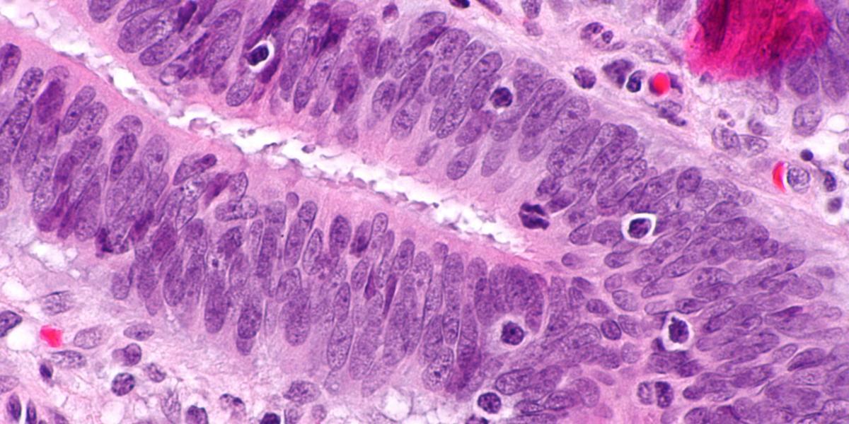 лечение рака ЖКТ в Европе
