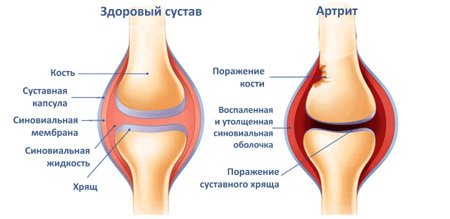 Лечение артрита суставов зарубежом крымские санатории для лечения суставов
