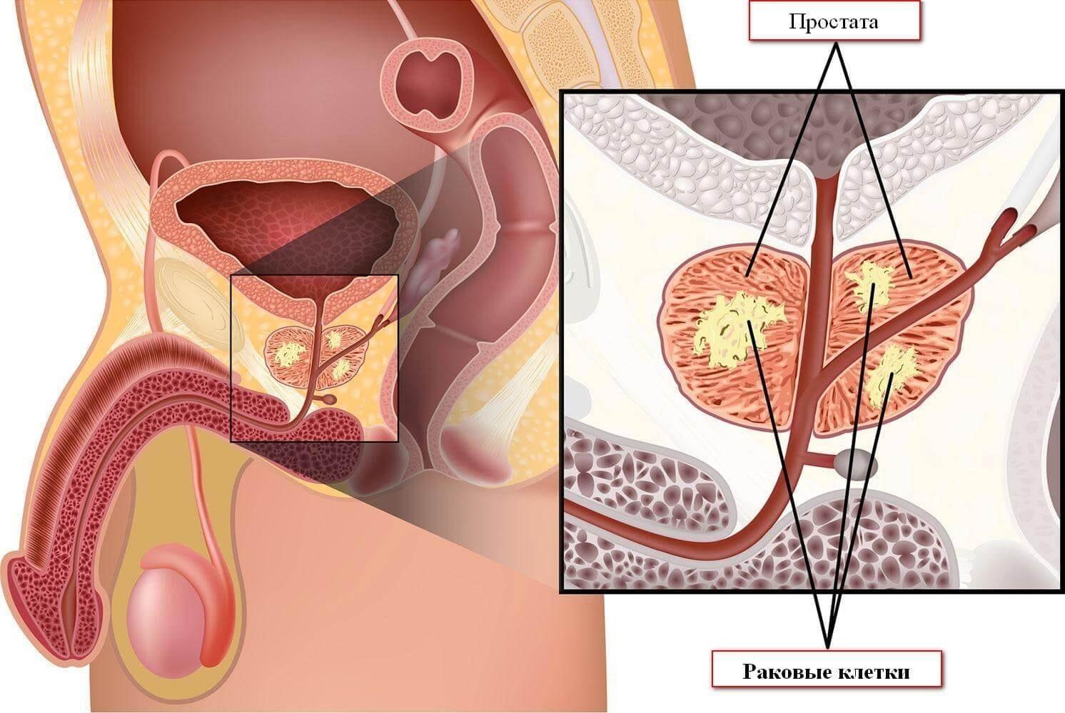 рак предстательной железы в европе