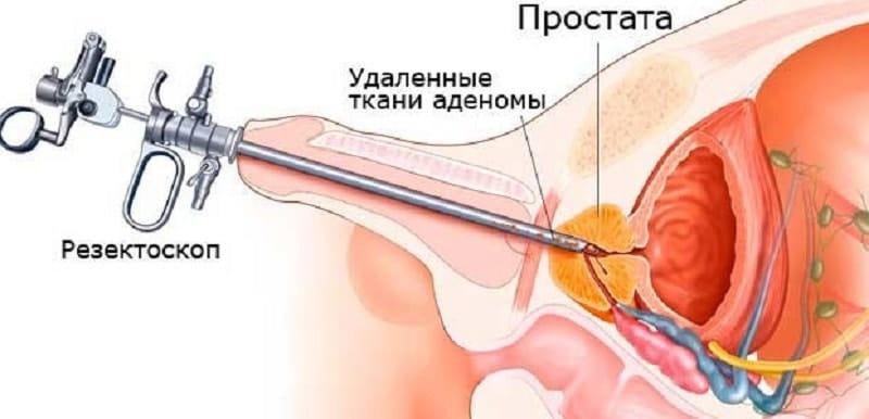 Аденома предстательной железы стоимость операции