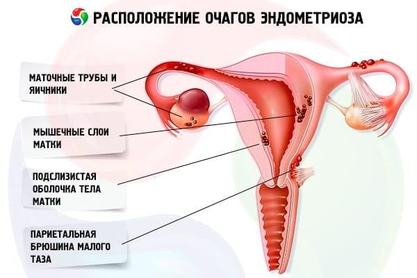 Беременность вылечивает эндометриозе