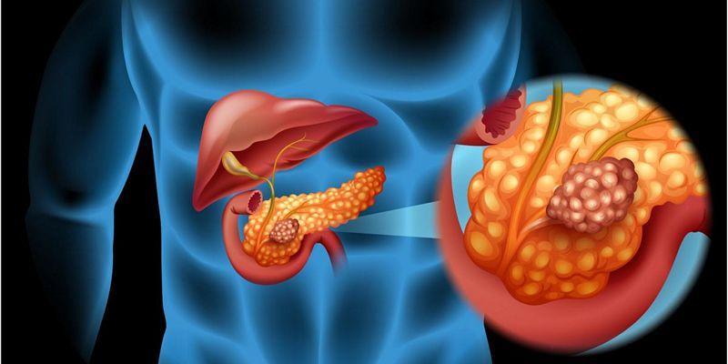 первые признаки рака поджелужочной железы