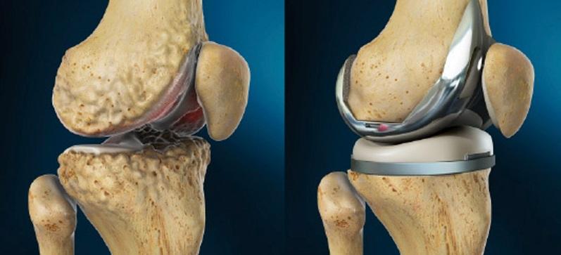 Как восстановить подвижные функции после эндопротезирования коленного сустава сустав коленный хрустит