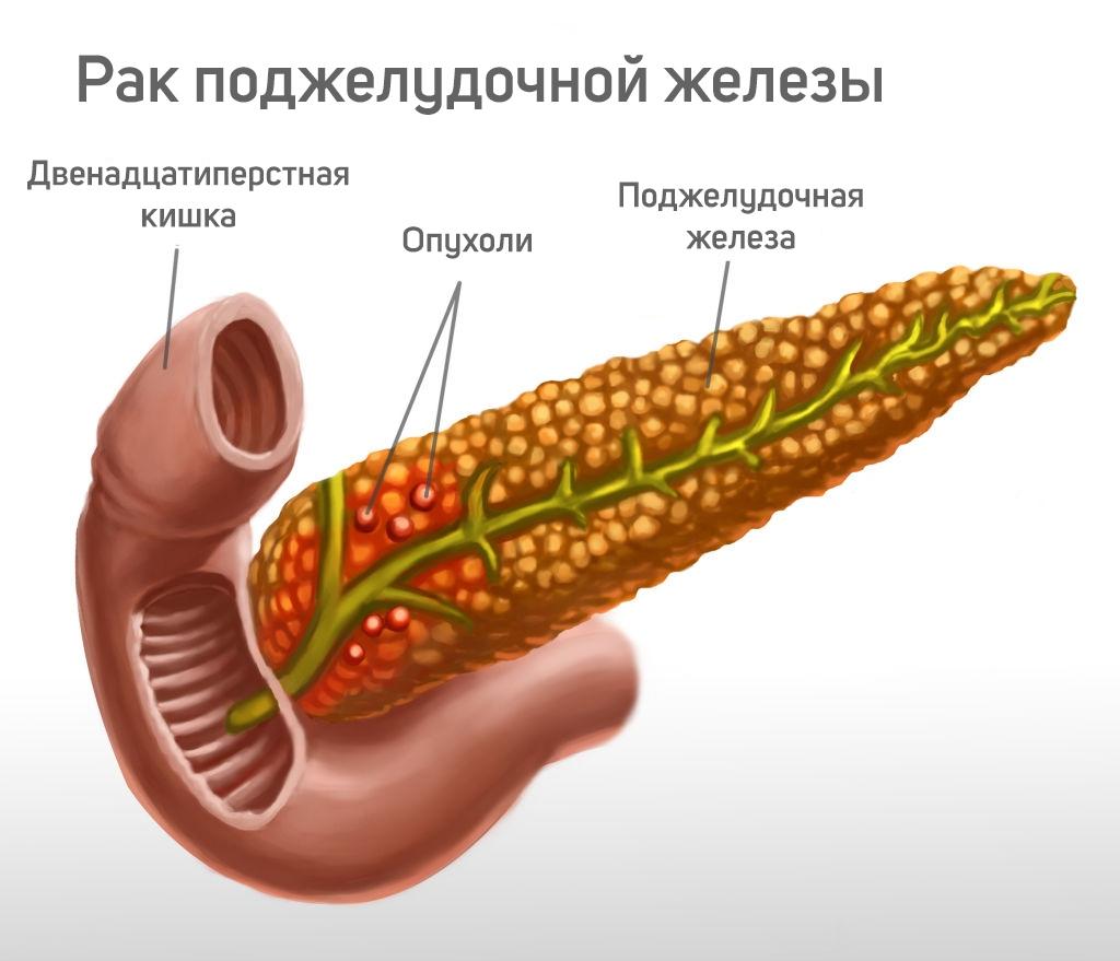 проблемы_лечения_рака_поджелудочной_железы