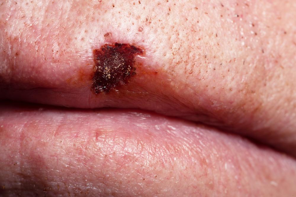 Лечение рака губы