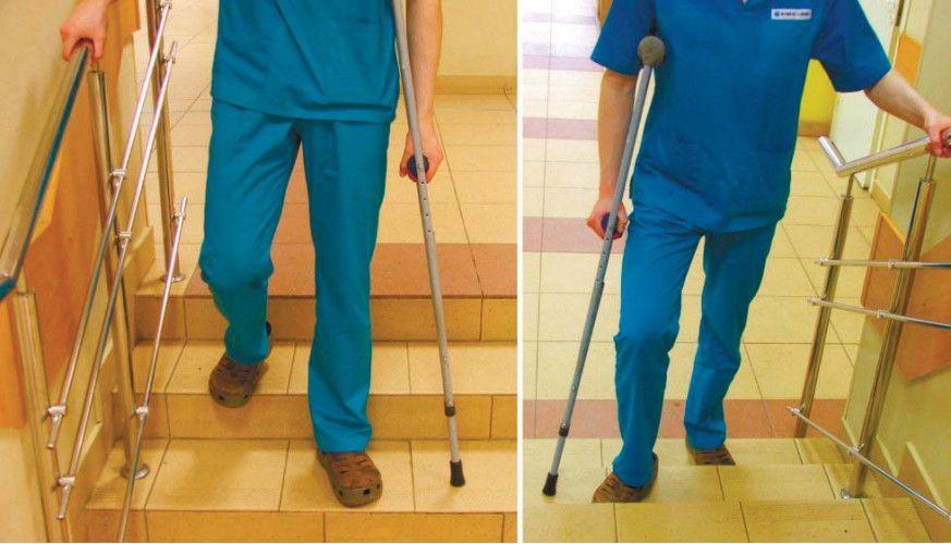 медицина эндопротезирование коленного сустава