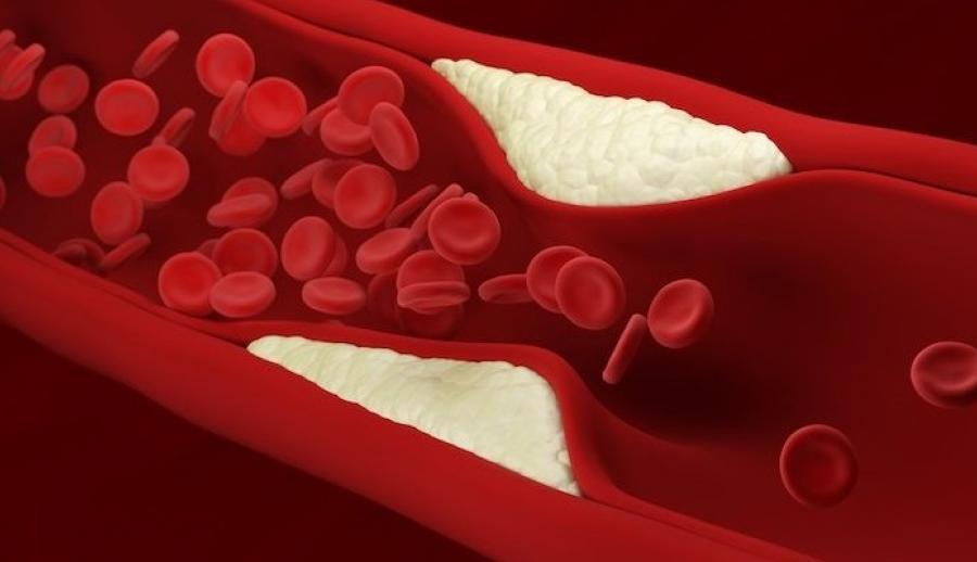 Новый тип сердечного лекарства? Наночастицы, разрушающие холестериновые бляшки