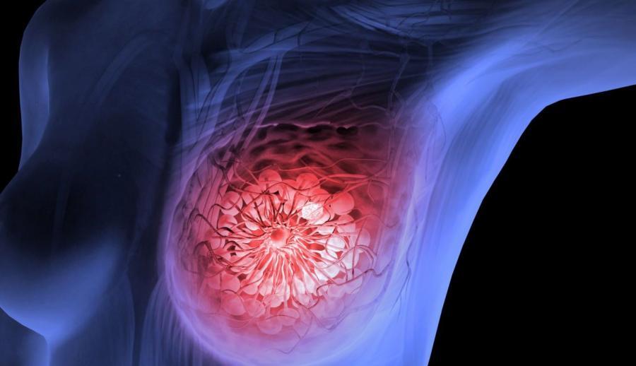 Рибоцилиб — первый ингибитор CDK4/6 — повышает выживаемость при метастатическом раке молочной железы на 30%