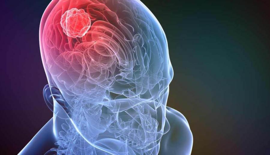 Пазопаниб — новый перспективный препарат для лечения сложных опухолей поджелудочной железы и нервной системы