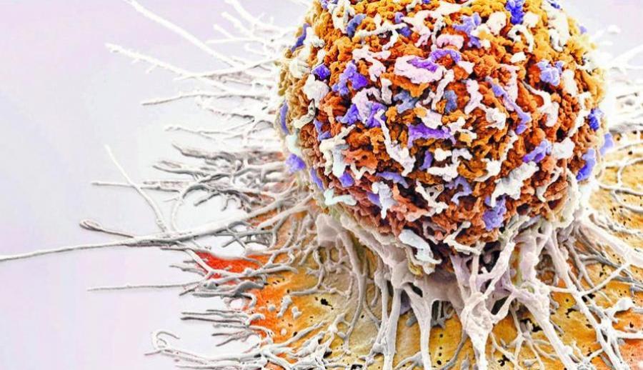 Ниволумаб существенно увеличивает пятилетнюю выживаемость при неоперабельном раке