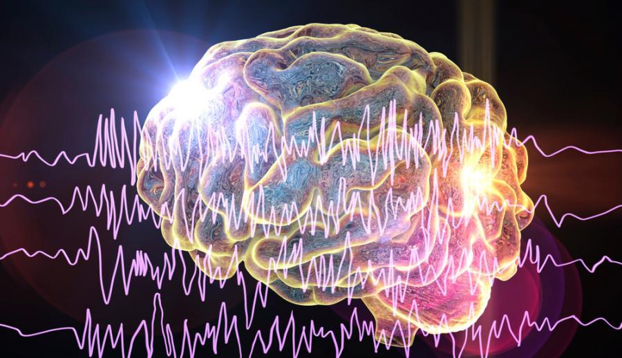 Мозг и энцефалография у пациента с эпилепсией во время припадка