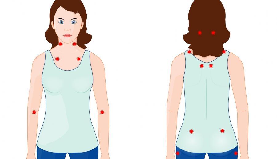 болезненные точки при фибромиалгии