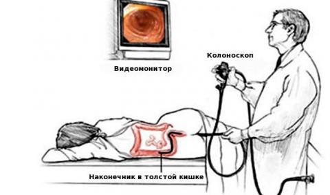 Колоноскопия (c анестезией и без)