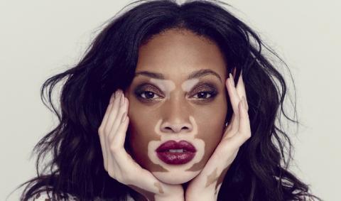 Генетические заболевания кожи