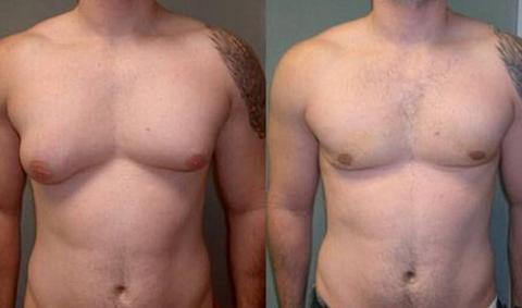 Коррекция груди у мужчин – маскулинизирующая маммопластика