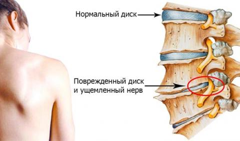 Лечение коленного сустава в бельгии артроскопия плечевого сустава отзывы