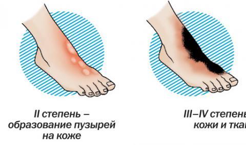 Восстановление кожи лица и тела после ожогов