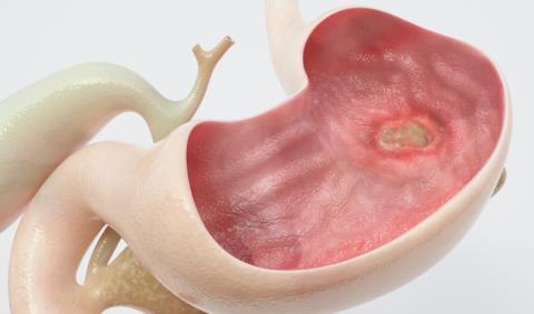 Язва желудка и органов пищеварения