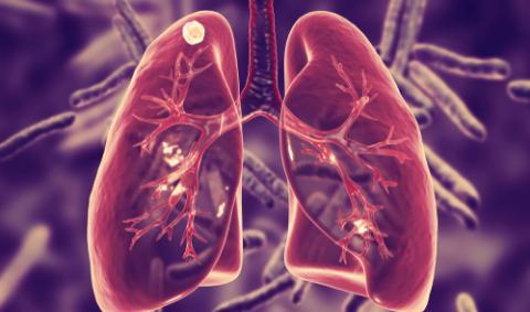 Лечение туберкулеза в Бельгии