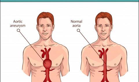 Операции при аневризме аорты