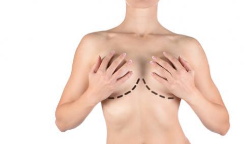 Коррекция избыточного объема – уменьшение груди при ее гипертрофии