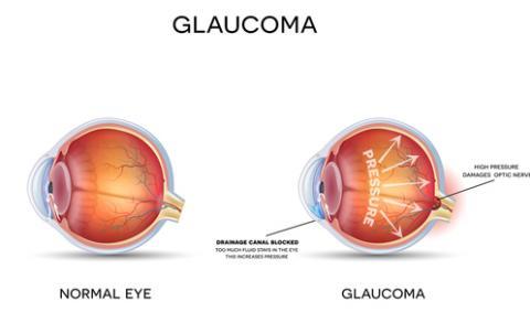 Лечение глаукомы в Бельгии