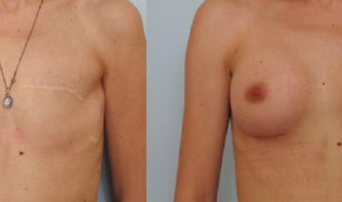 Восстановление груди после травм или мастэктомии