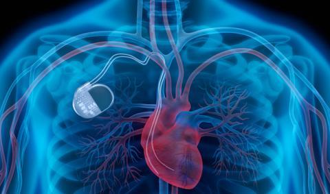Установка кардиостимулятора: операция по доступной стоимости